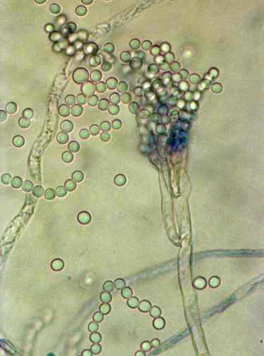 Penicillium chrysogenum – a source of penicillin